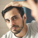 Hair Transplant, Hair Treatment,Hair Loss, Meeraz clinic,
