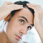 Hair Transplant,Beard transplant,Hair Loss,Hair problem,Hair Transplant in Mumbai,